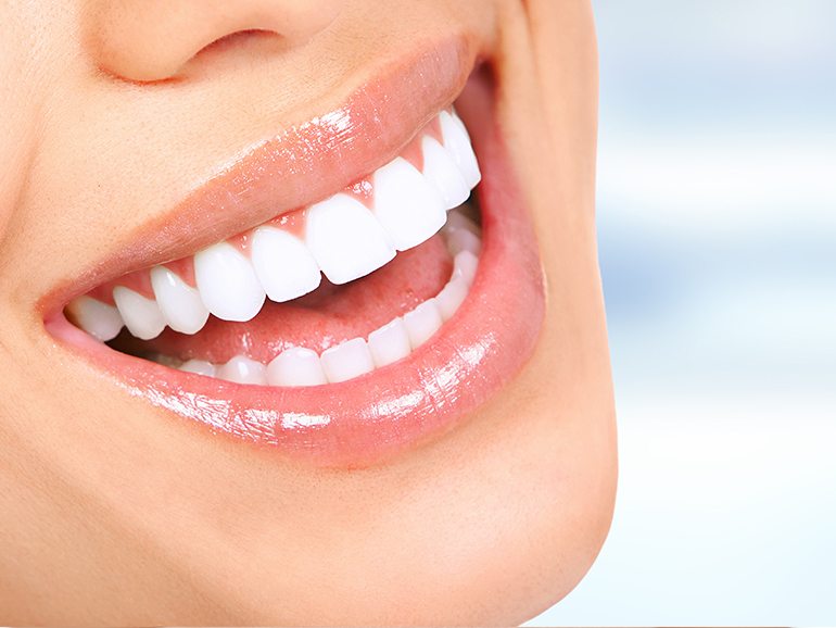 Radiant Smile after teeth whitening