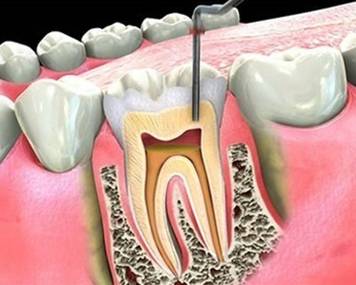 Root-canal Treatment root