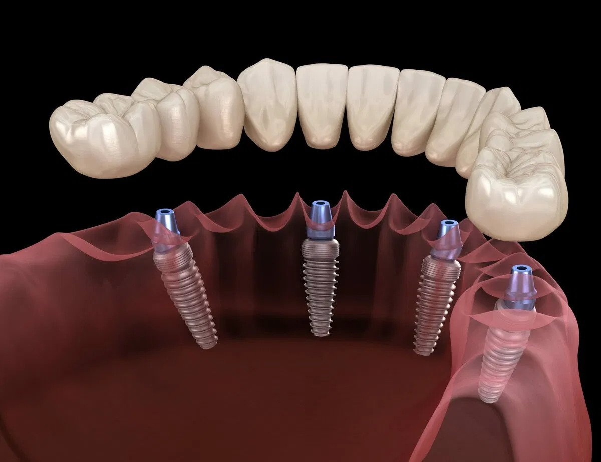 dental-imp-image-abt